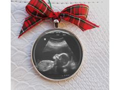 Ultrasound Ornament New Mom gift Sterling Silver Plated Large 2 inch Custom Baby Sonogram Ornament - Ultrasound Photo picture ornament Custom Christmas Ornaments, Baby Ornaments, Christmas Mom, Diy Christmas Gifts, Baby Ultrasound, Ultrasound Pictures, Baby Surprise Announcement, Picture Ornaments, Baby On The Way