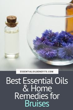 Bruises are a part of life that you can't avoid. But sometimes they can be unsightly and it's normal to want to heal them as quickly as possible. Here are the best essential oils and home remedies for bruises. Oils For Eczema, Oils For Sinus, Essential Oils For Headaches, Essential Oils For Hair, Essential Oil Uses, Home Remedies For Bruises, Heal Bruises, Cypress Essential Oil, Essential Oil Storage