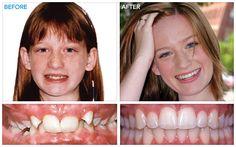 Braces Tips, Kids Braces, Teeth Braces, Braces Before And After, After Braces, Damon Braces, Getting Braces, Heal Cavities, Teeth Straightening