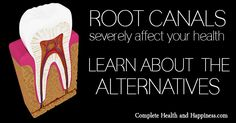 Root Canals Severely Affect Your Health. So What's The Alternative? - Complete Health and Happiness