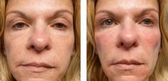 Facial Yoga: Do Face Toning Remedies Work? Do They Work For Females And Men?