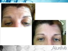 Look at the incredible results on this AlureVé user's forehead after 5 weeks using the Day & Night Synergy Serum & Invisipatch Night Cream! #skinrevolution #results