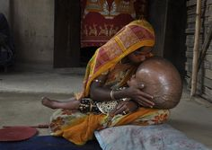"""Doctors carried out life-saving surgery Wednesday on an Indian baby suffering from a rare disorder that caused her head to swell to nearly double its size, in a case that aroused sympathy worldwide. """"The surgery went perfectly, much better than expecte"""