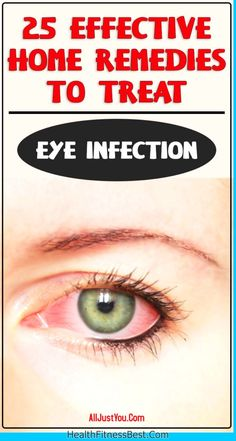 25 Effective Home Remedies To Treat Eye Infection #eye #beauty #face #infection #treat #remedies #home