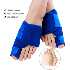 Orthopedic Bunion Corrector (Wear At Night) - Adjustable For All Foot Sizes - SkinnyBunny Bunion Remedies, Foot Remedies, Homeopathic Remedies, Health And Wellbeing, Health Benefits, Health Tips, Health Care, Bunion Surgery, Bunion Relief
