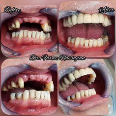 2 implantat mit 4 Zirkonkeramikkrone Halloween Face Makeup
