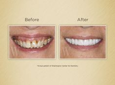 Gummy Smile - Before & After