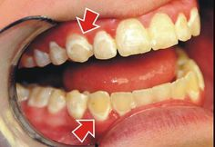 What are these white spots on my teeth? A very common problem that can occur while a patient has braces is the formation of white spots during treatment. When the braces are removed, some patient… Teeth After Braces, Braces Off, Dental Braces, Dental Implants, Dental Care, School Make Up, Braces Problems, Braces Tips, Getting Braces