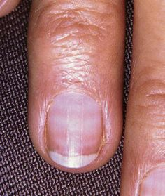 7 Things Your Nails Can Tell You About Your Health | White Lines