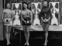 Winning contestants in the 1956 Miss Correct Posture beauty contest - (from left) Marianne Baba (second place), Lois Conway (Miss Correct Posture) and Ruth Swenson (third place) pose with trophies and their X-rays.
