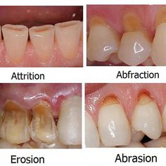 Difference between dental erosion, enamel attrition, abfraction and tooth abrasi… - Mundhygiene Dental Assistant Study, Dental Hygiene Student, Dental Hygienist, Dental Implants, Dental Surgery, Dental Humor, Surgery Humor, Oral Hygiene, Dental World