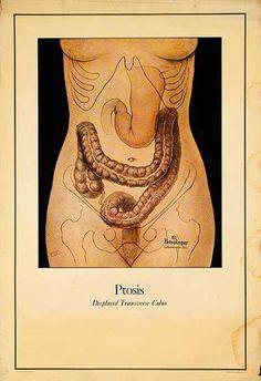 displaced colon. vintage medical illustration