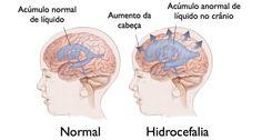 Especialista del IMSS Yucatán informa sobre la hidrocefalia normotensiva