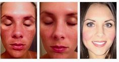 """Here's what Taylor had to say about RF """"When people tell me our products are """"nothing special""""  I was prescribed bleaching cream from my dermatologist with my first pregnancy mask- it didn't work.  I used RodanFields Reverse Regimen for 30 days after I developed melasma while I was pregnant with the twinkies- my results speak for themselves."""" There's a 60-day money back guarantee if you aren't 100% satisfied. So basically...you have Nothing to lose everything to gain #skincare #skin #beauty…"""