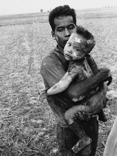 Horst Faas photo - a Vietnamese man holds a child burned by napalm-notice the child is missing a hand- Vietnam War