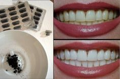 use charcoal to whiten your teeth! Leave for three min Beauty Secrets, Diy Beauty, Beauty Hacks, Cosmetic Treatments, Diy Spa, Natural Herbs, Slow Food, Natural Cosmetics, Body Care