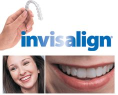 We proudly serve our patients with invisalign! what a great way to get that perfect smile!