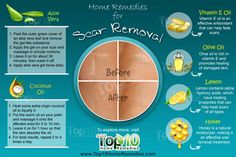 Top 10 Home Remedies to Get Rid of Scars Caused due to Accidents, Acne, Insect…