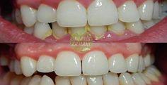 13 Home Remedies To Remove Dental Plaque & Tartar Naturally - Mund- und Zahngesundheit 2020 Dental Hygiene School, Dental Humor, Oral Hygiene, Dental Hygienist, Dental Health, Oral Health, Teeth Health, Gum Health, Healthy Teeth