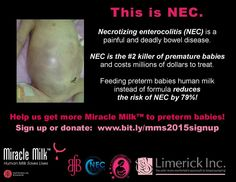 NEC is often preventable! Help us get more Miracle Milk to more fragile babies!
