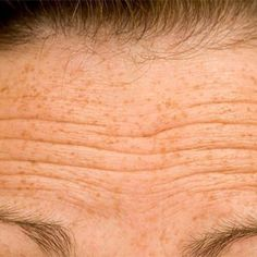 Ways to get rid of forehead wrinkles at home. Remedies for forehead wrinkles removal. Treat forehead wrinkles fast and naturally. Best Anti Wrinkle Serum, Eye Wrinkle, Wrinkle Creams, Wrinkle Remedies, Dry Skin Remedies, Acne Remedies, Face Wrinkles, Prevent Wrinkles, Wrinkles Forehead
