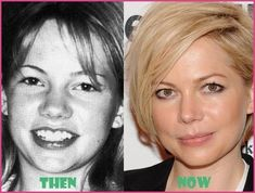 Williams Plastic Surgery Before and After Nose Job - -Michelle Williams Plastic Surgery Before and After Nose Job - - Plastic Surgery Photos, Celebrity Plastic Surgery, Michelle Williams, Angelina Jolie Plastic Surgery, Actress Without Makeup, Chin Implant, Nose Surgery, Celebrities Before And After, Tummy Tucks