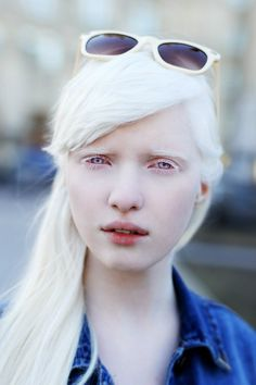 Find images and videos about white hair, pale skin and albino on We Heart It - the app to get lost in what you love. Just Beauty, Beauty Women, Modelo Albino, Pretty People, Beautiful People, Albino Girl, Albino Model, Face Photography, White Hair