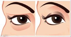 There is a natural organic remedy for drooping eyelids and hooded eyes! Dip cotton swab in egg white and apply, let dry. Repeat in slightly larger area if needed. Saggy Eyelids, Drooping Eyelids, Droopy Eyes, Beauty Care, Diy Beauty, Beauty Skin, Beauty Hacks, Hooded Eyes, Beauty Recipe