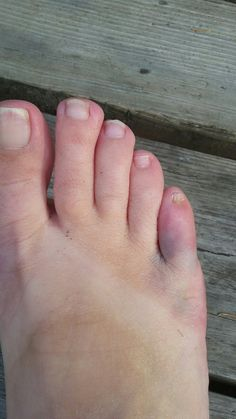 How to help heal a broken big toe nail pain