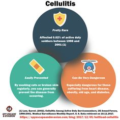 Cellulitis infographic showing risk and prevention