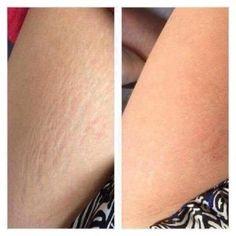 Cellulite Dermatic Effects Gel - korting Nutriol Shampoo, Bronzing Pearls, Eyebrow Serum, Galvanic Spa, Nu Skin, Beauty Guide, Beauty Awards, Volume Mascara, Body Butter