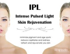 See beautiful changes in your complexion with Intense Pulsed Light.