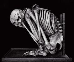 Jack Burman, Skeleton from Germany (From the Dead) Human Skeleton, Skeleton Art, Skeleton Love, Skeleton Makeup, Skull Makeup, Memento Mori, La Danse Macabre, Skull Reference, Anatomy Reference