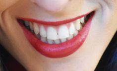 10 Astuces Naturelles pour Blanchir les Dents