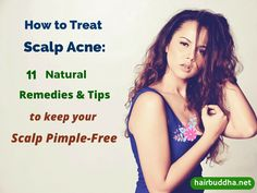 How to treat scalp acne. Scalp pimple are itchy and annoying. Here are 11 natural home remedies & tips to keep your scalp acne free.