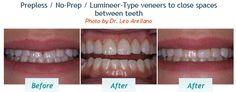 Prepless / No-Prep / Lumineer-Type veneers to close spaces between teeth