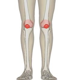 Ayurvedic Approach to Healthy Joints | Joint disorders affect millions of Americans. 80% of individuals over 50 years of age reportedly have joint concerns of one type or another. Reasons range from obesity to heredity. Improper use of the joints, overexertion, stress, diet and lifestyle contribute to the problem. 2 Types of Joint Problems Ayurveda identifies two major types of joint …