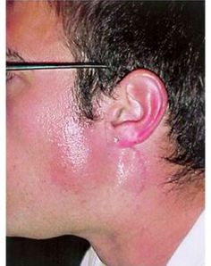 Pixel Frey s Syndrom Salivary Gland, Clinic, Medical, August 2014, Medicine, Med School, Active Ingredient