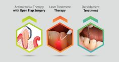 Some of the treatment procedures for peri-implantitis are: •	Antimicrobial Therapy with Open Flap Surgery •	Laser Treatment Therapy •	Debridement Treatment