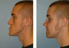 Jaw Surgery Upland | Corrective Jaw Surgery in Upland, Rancho ...