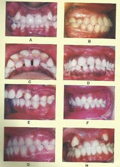 Classification of malocclusion Crooked Teeth, Dentistry, Continue Reading, Health, Articles, Layout, Detail, Health Care, Page Layout