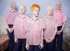 Blind Albino Students Stand In A Dorm At The Vivekananda Mission School In India - 30+ Powerful Portraits Of The Human Race