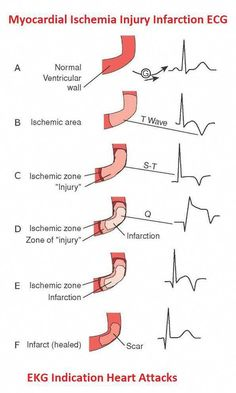 ECG indications for myocardial ischemia, injury and infarction - Modern Med Surg Nursing, College Nursing, Cardiac Nursing, Nursing Mnemonics, Nursing Degree, Nursing Care, Daily Health Tips, Health Advice, Accelerated Nursing Programs
