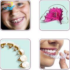 chi phí niềng răng móm