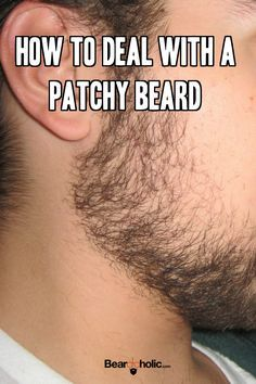 How to Deal With a Bald Spot in Beard (Patchy Beard