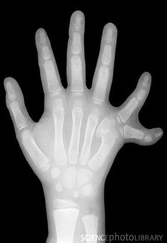 "Six fingers (polydactyly), X-ray | ""Polydactyly can occur by itself, or more commonly, as one feature of a syndrome of congenital anomalies. When it occurs by itself, it is associated with autosomal dominant mutations in single genes, i.e. it is not a multifactorial trait. But mutation in a variety of genes can give rise to polydactyly. Typically the mutated gene is involved in developmental patterning, and a syndrome of congenital anomalies results, of which polydactyly is one feature or…"