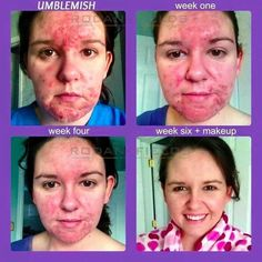 Rodan + Fields is the #1 Premium Acne Brand in the US and these results are why! The Unblemish Regimen will clear acne! Message me for more information.