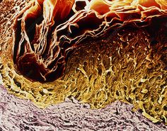 Coloured scanning electron micrograph of a section through human skin. Macro Pictures, Microscopic Photography, Scanning Electron Micrograph, Systems Biology, Complex Systems, Science Photos, Human Body, Medicine, Health