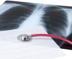 It's a sad fact that people with chronic obstructive pulmonary disease, better known as COPD, have trouble doing what connects us to life – they can't eas