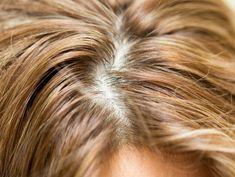 Włos ci z głowy nie spadnie Scarring Alopecia, Comb Over Haircut, Healthy Scalp, Natural Hair Styles, Long Hair Styles, Hair Regrowth, Hair Loss Treatment, Smooth Hair, Her Hair
